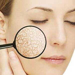 ضایعات پوستی | بیماری صدف