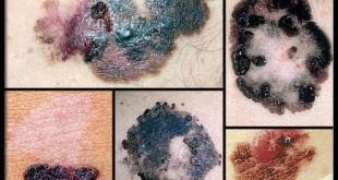 تومورهای پوستی