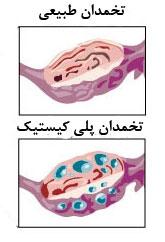 سندروم تخمدان پلی کیستیک