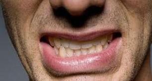 قرچ قرچ دندانها