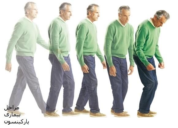 مراحل بیماری پارکینسون