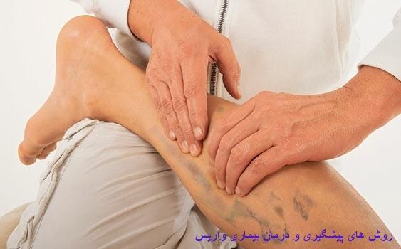 روش های پیشگیری و درمان بیماری واریس