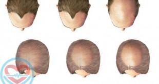 رابطه ریزش مو با افزایش سن و اسید فولیک در سالمندان