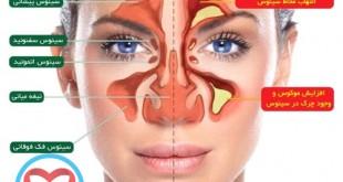 سینوزیت بیماری شایع و آزاردهنده و درمان های آن