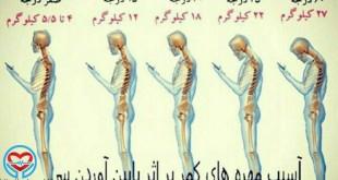 آسیب مهره های کمر و گردن