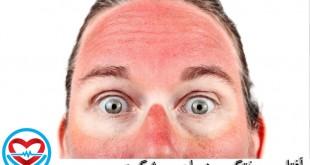آفتاب سوختگی و درمان و پیشگیری