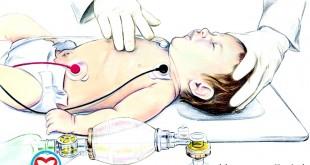 احیای قلبی-ریوی نوزادان