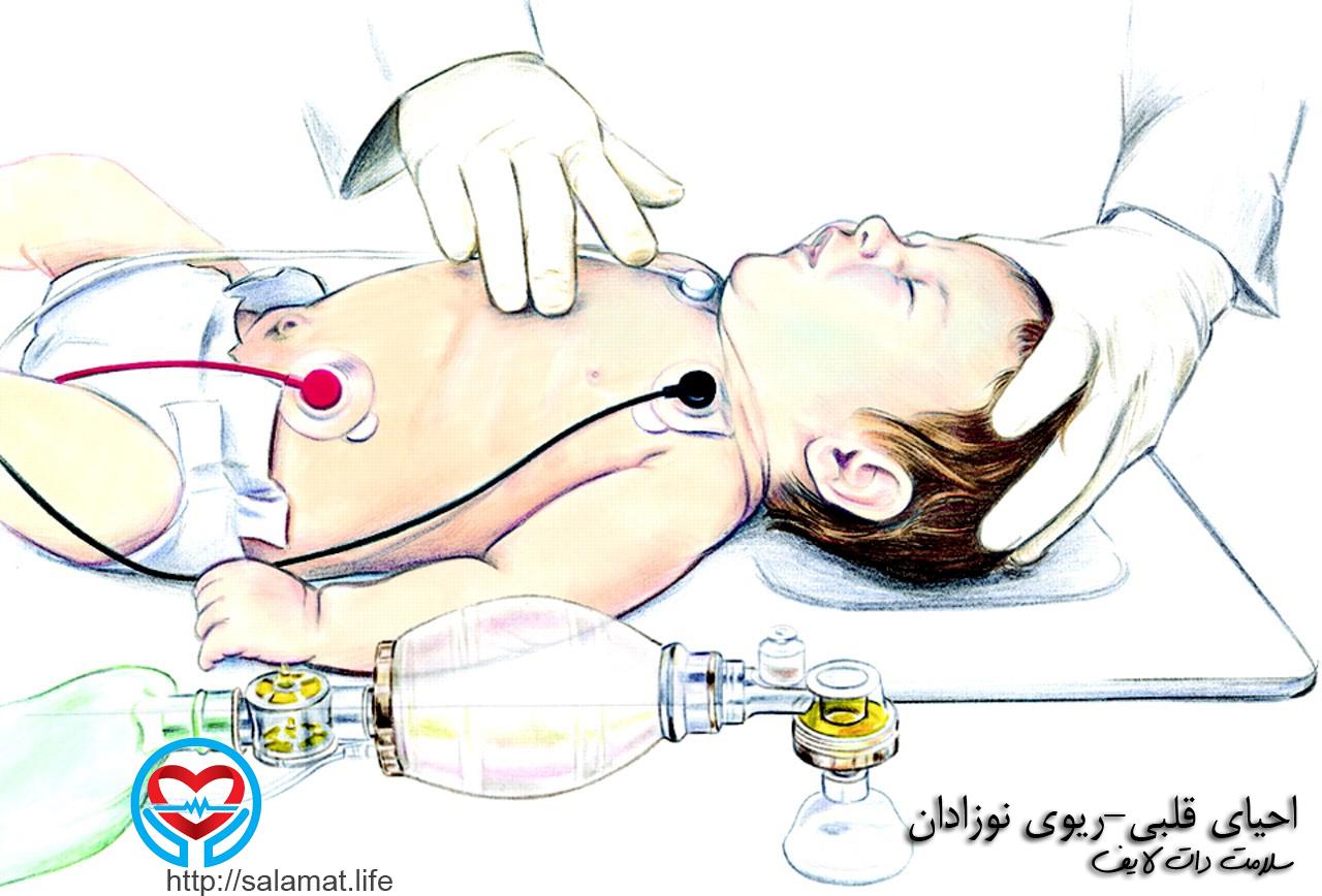 ماساژ قلبی در نوزادان