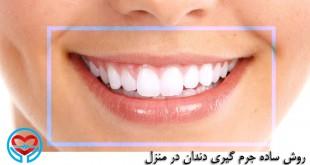 روش ساده جرم گیری دندان در منزل