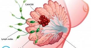 رژیم غذایی گیاهی و سرطان پستان