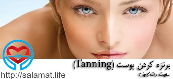 برنزه کردن پوست (Tanning)