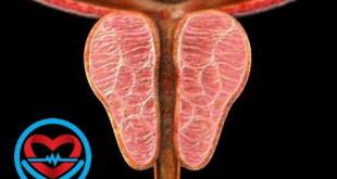 بزرگی خوشخیم پروستات | سلامت دات لایف راهنمای زندگی سالم