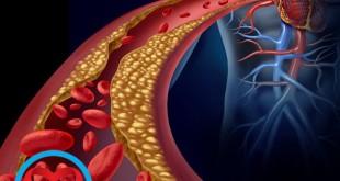 کلسترول خون | سلامت دات لایف راهنمای زندگی سالم