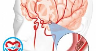 سکته ی مغزی نوع ایسکمیک | سلامت دات لایف راهنمای زندگی سالم
