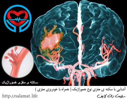 سکته ی مغزی نوع هموراژیک | سلامت دات لایف راهنمای زندگی سالم
