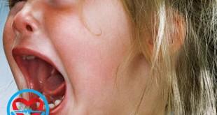 قشقرق یا علم شنگه در کودکان | سلامت دات لایف راهنمای زندگی سالم