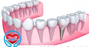 ایمپلنتهای دندانی | سلامت دات لایف راهنمای زندگی سالم