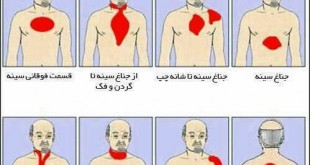 درد هنگام حمله قلبی