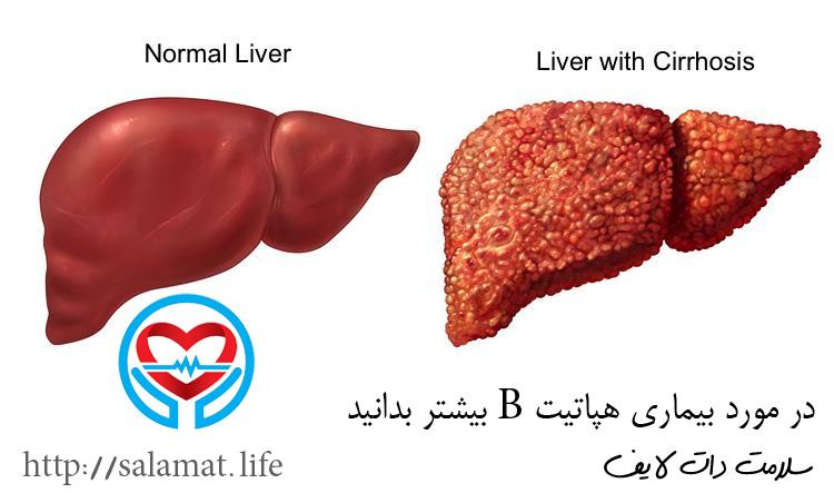 هپاتیت B | سلامت دات لایف راهنمای زندگی سالم