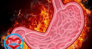 بیماری گاستریت | سلامت دات لایف راهنمای زندگی سالم