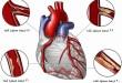 آنژیوگرافی عروق قلبی   سلامت دات لایف
