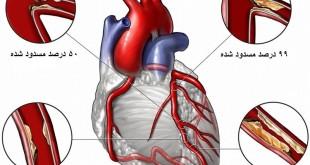 آنژیوگرافی عروق قلبی | سلامت دات لایف
