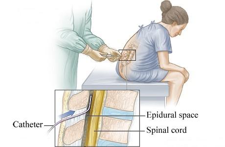 بی حسی ناحیه ایی اسپاینال Spinal