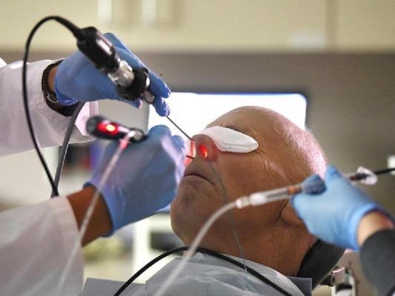 جراحی سینوزیت
