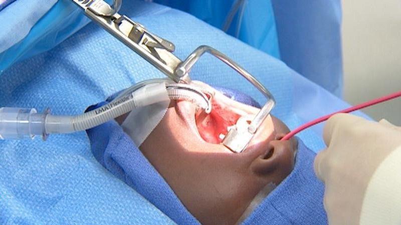 جراحی لوزه و نکات پیرامون آن