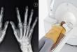 روش های تشخیص آرتروز