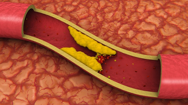میزان صحیح کلسترول و تری گلیسیرید در دیابت