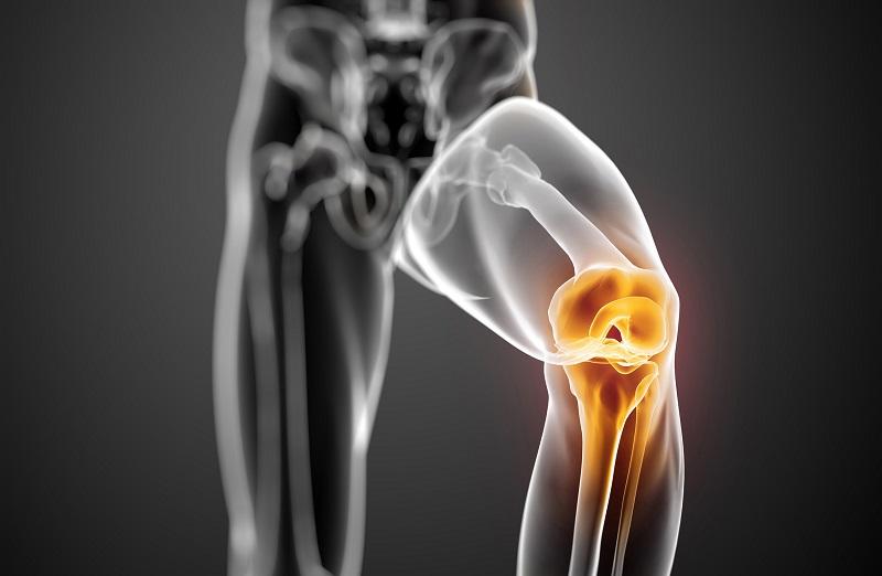 نشانه های عدم سلامت مفصل زانو