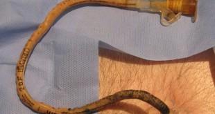 گاستروستومی اندوسکوپیک پوستی