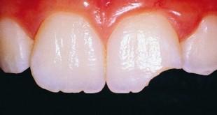 خرد شدن دندان