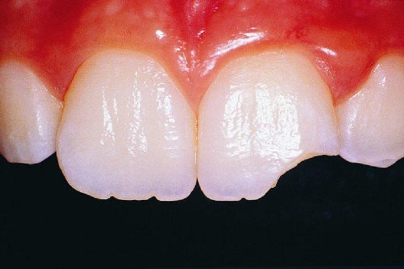پوک شدن و خرد شدن دندان ها