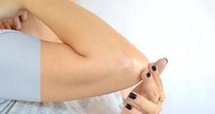 سیاهی پوست آرنج و زانو