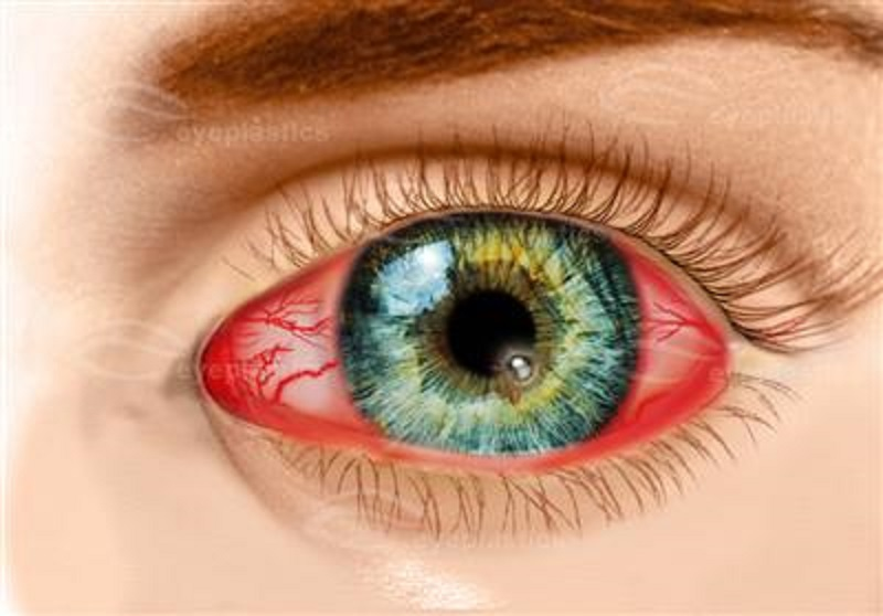 علل قرمزی چشم