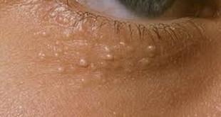 جوش های سفید رنگ زیر چشم