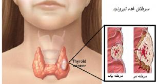سرطان غده تیروئید