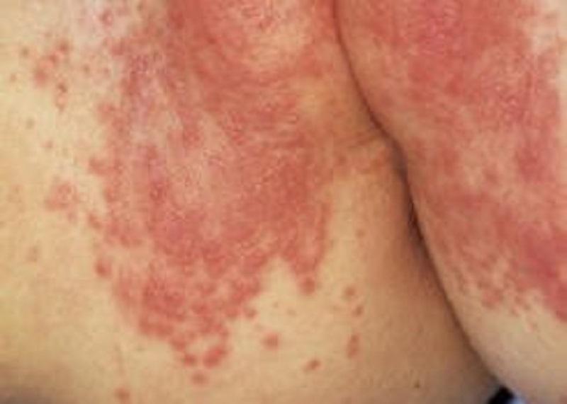 ضایعات پوستی پوشک نوزادان