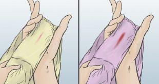 لکه بینی در بین دو قاعدگی