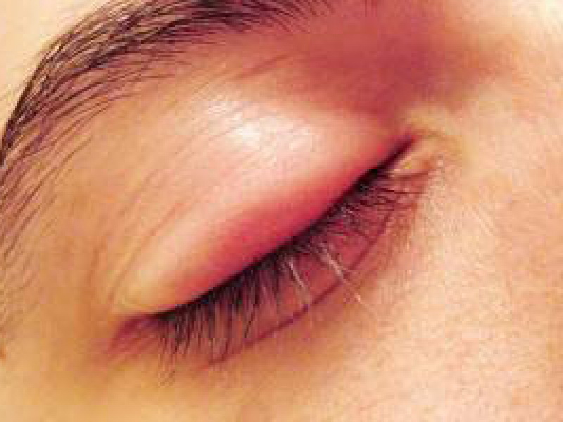 بیماری های شایع پلک ، علل ، درمان