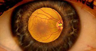 بیماری رتینوپاتی دیابتی یا چشم دیابتیک