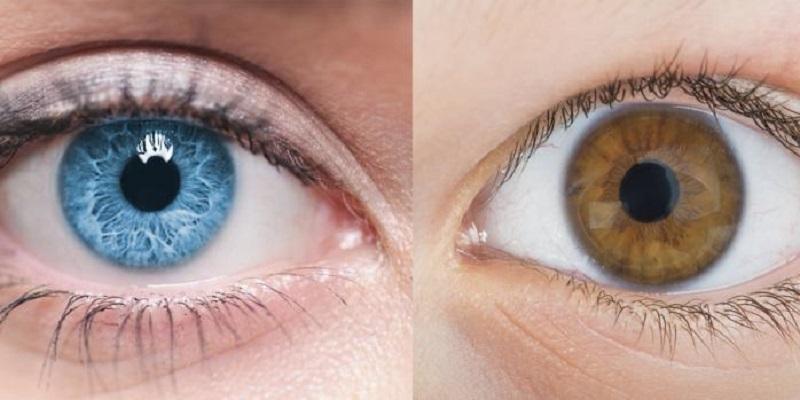 تغییر رنگ چشم با ایمپلنت عنبیه مصنوعی
