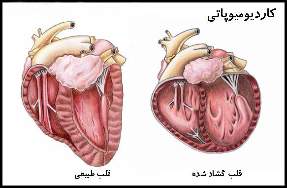 cardiomyopathy | کاردیومیوپاتی