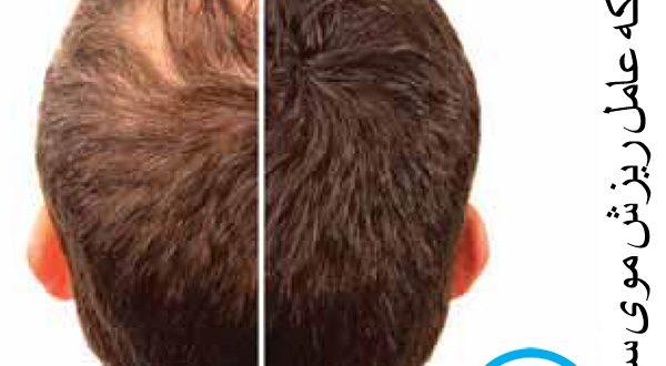 انگل ریزش موی سر