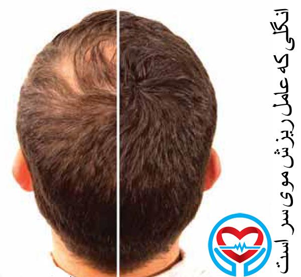 انگل دمودکس عامل ریزش موی سر