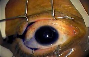 عمل جراحی آب مروارید چشم