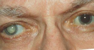 Cataract آب مروارید