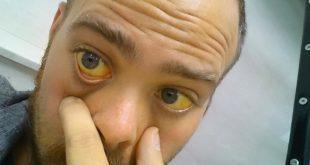 علایم بیماری زردی